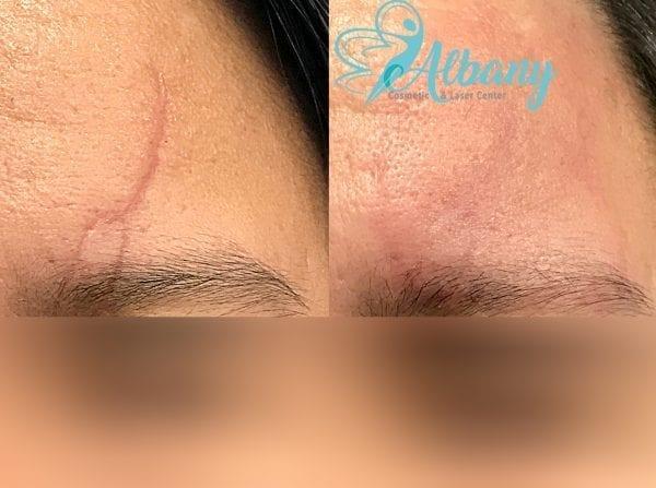 Scar removal Fraxel laser