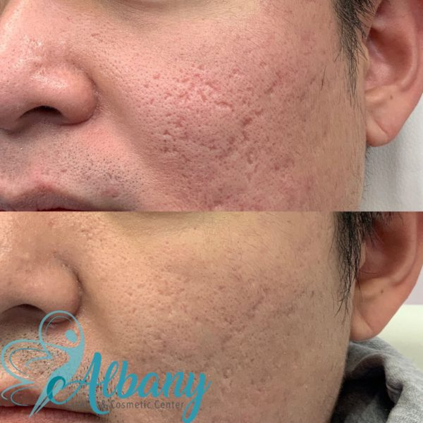 Acne scars treatment Fraxel